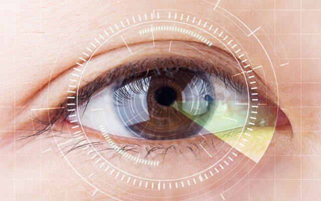 phương pháp mổ cận thị
