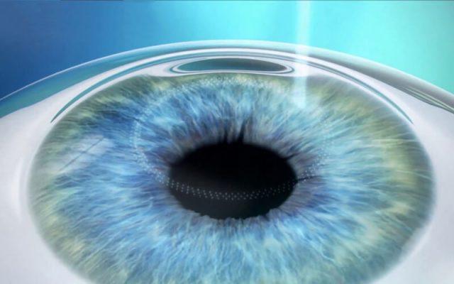 relex smile tạo 2 mặt phân cách bằng tia laser