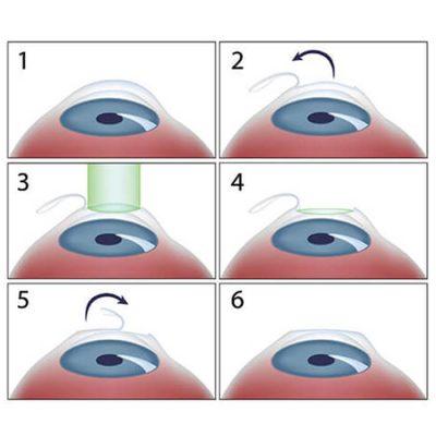mổ mắt cận thị lasik